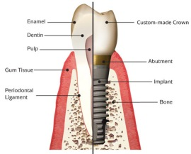 dental-implant-anatomy