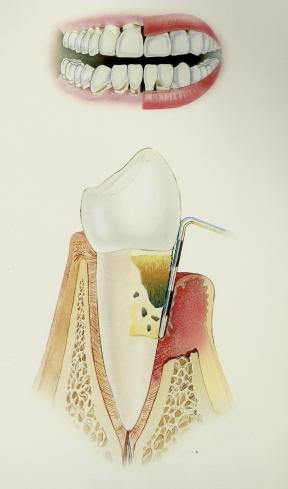 Periodontitis Severa - 7+mm, mucha mobilidad de dientes