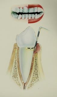 Periodontitis Inicial 5-6mm