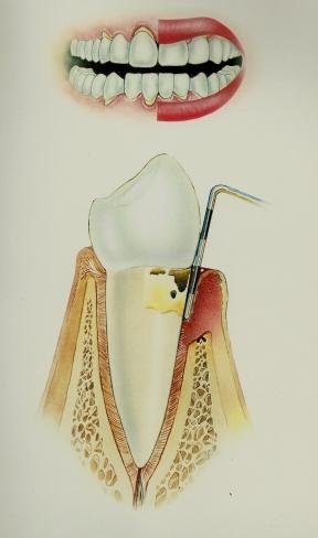Periodontitis Moderada 6-7mm, mobilidad leve en los dientes
